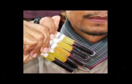 Syrian rebels aka jihadists sell the blood of Christians in vials to Saudia Arabia for 100,000 dollars per vial. Image courtesy of Walid Shoebat.