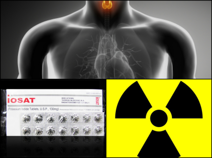 radiation exposure collage