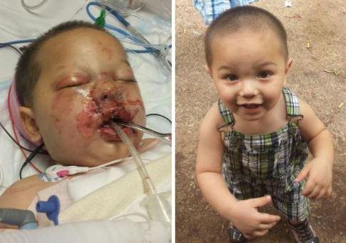 screenshot Toddler critically burned in SWAT raid, takes stun grenade to face 003